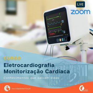 Curso Eletrocardiografia